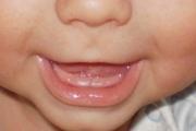 Зубки, где вы?