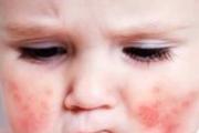 Диатез у детей — лечение